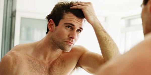 men's-hair-loss