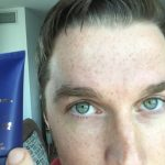 Supercharge Your Skin, Reduce Under Eye Bags